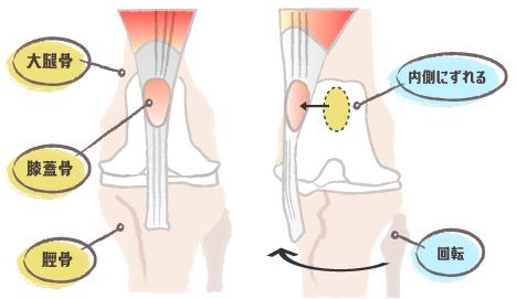 膝蓋骨脱臼の図3