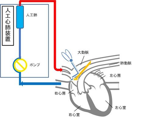 人工心肺図